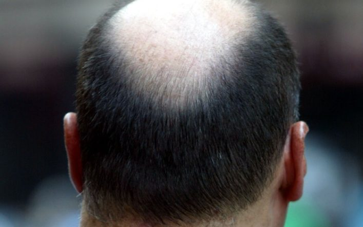 Trasplantes capilares en Turquía: la mejor solución para recuperar tu cabello